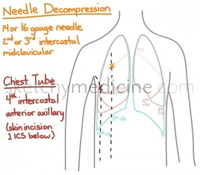 needle decompression