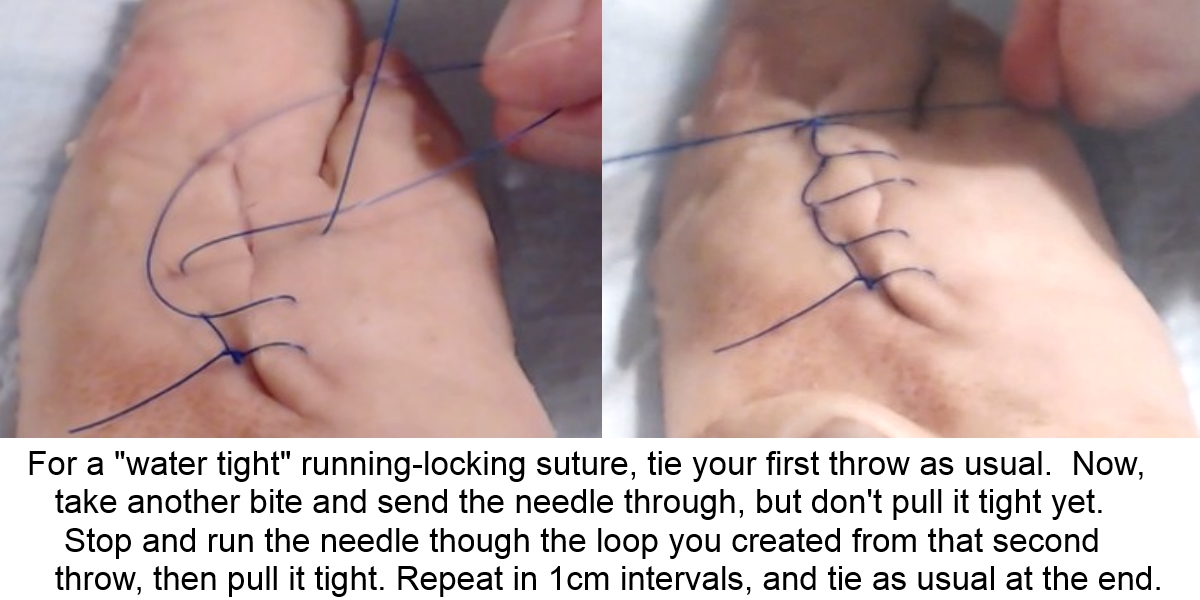Learn to Repair Lacerations with this Easy Suturing Technique!
