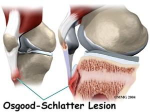 Pain of Osgood Schlatter Lesion