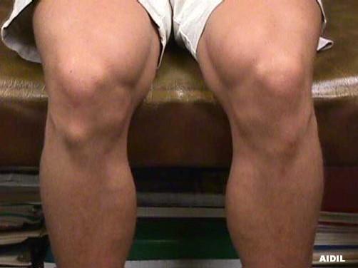 Bony Bump Below the Knee