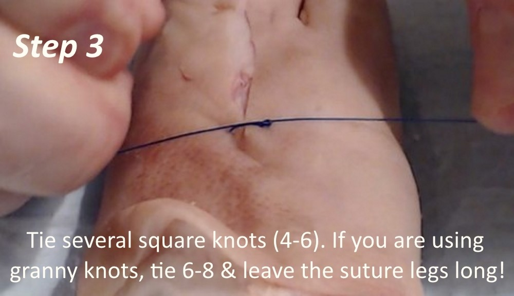 Suture Technique