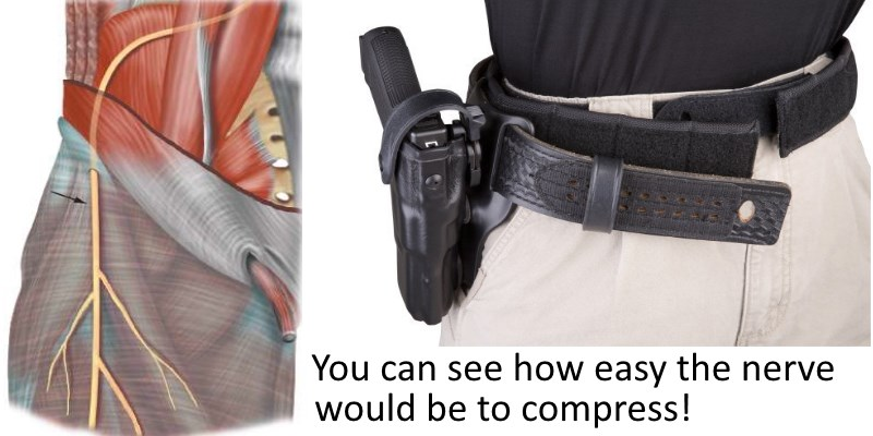 Nerve Compression
