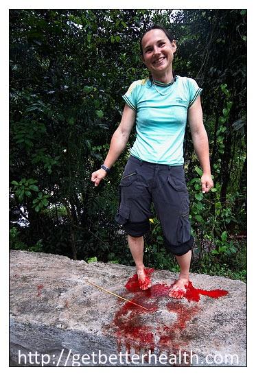 leeches and bleeding