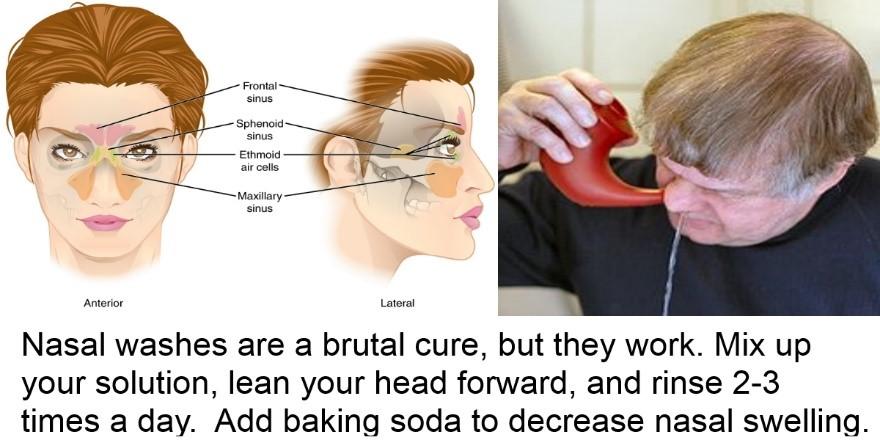irrigation of sinuses