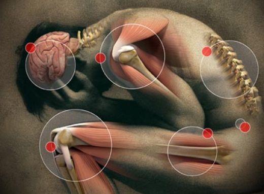 Glycosaminoglycans Cartilage
