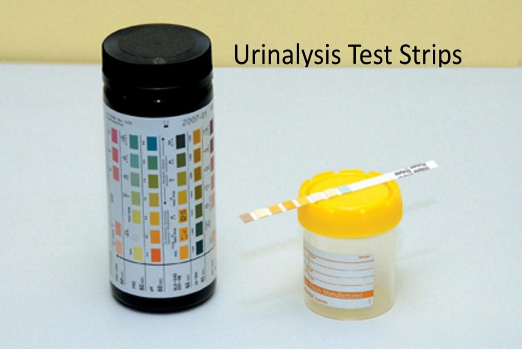 urinalysis strips