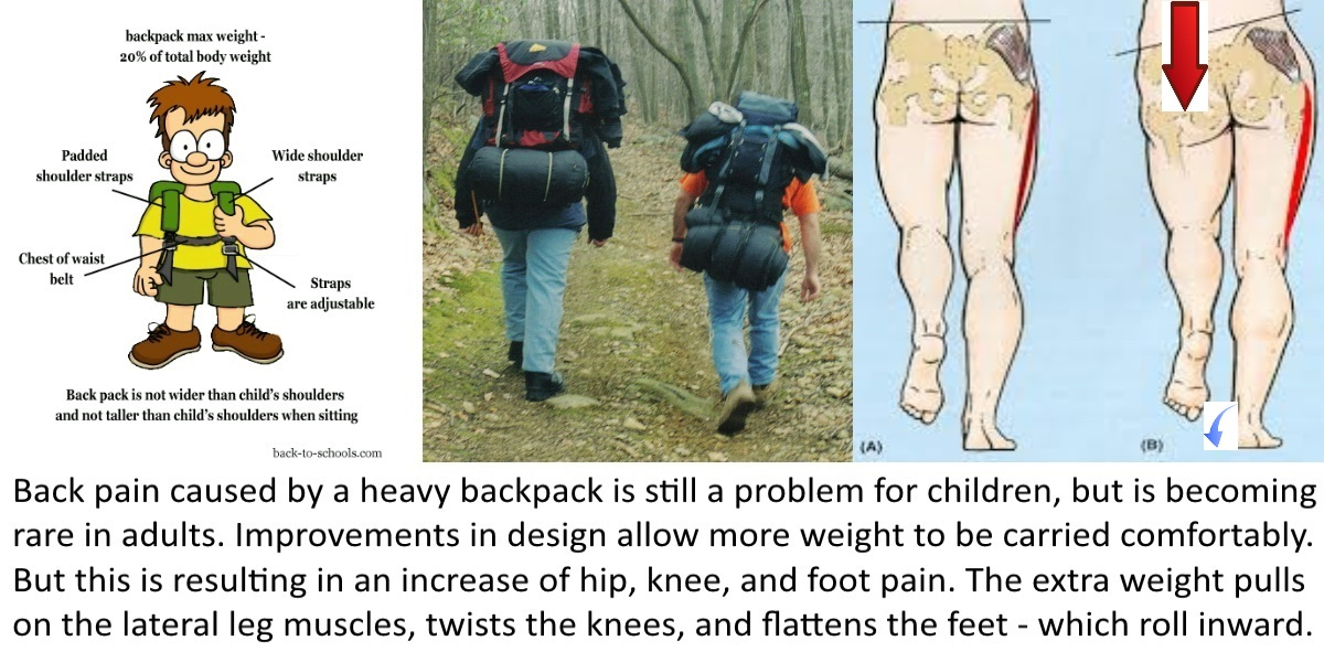 Treating Knee and Foot Pain from Heavy INCH Bags on the Move