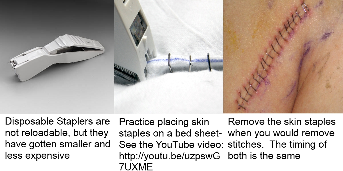 Treating a Wound & Superglue Won't Work? Use a Skin Stapler