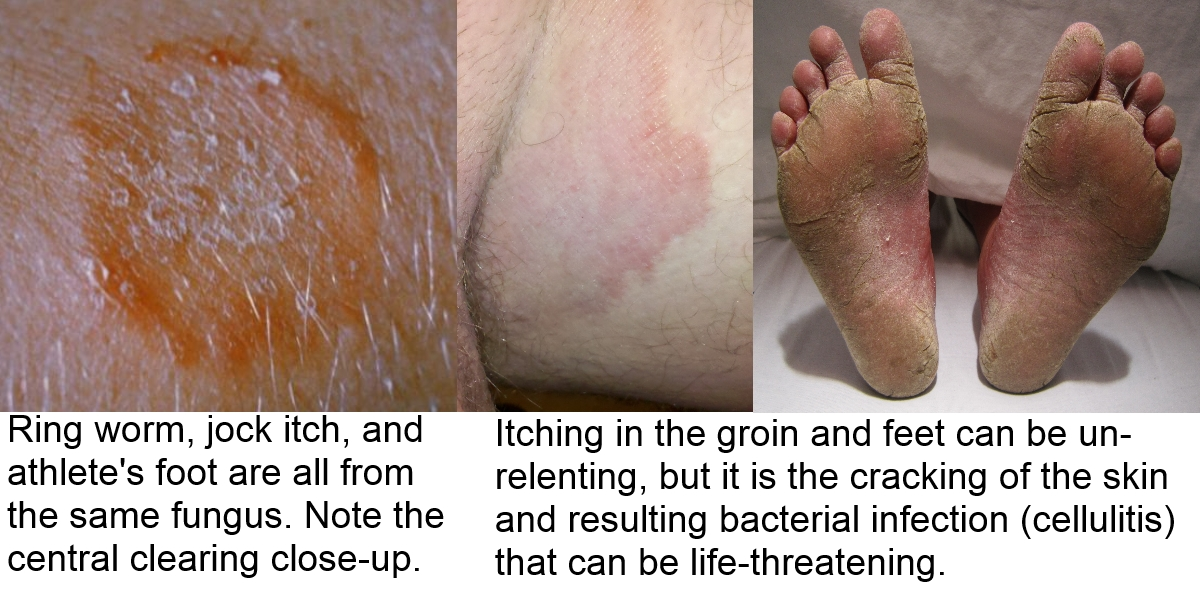 cure a rash naturally