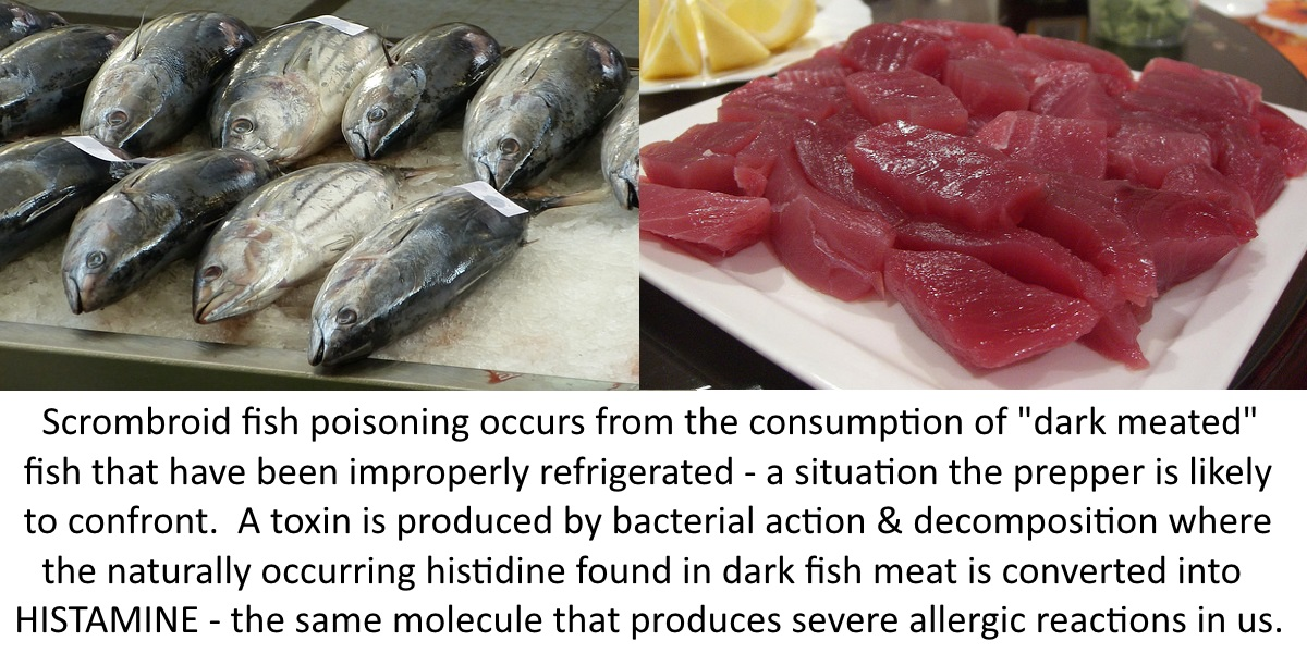 Survival medicine and emergency preparedness for Raw fish food poisoning