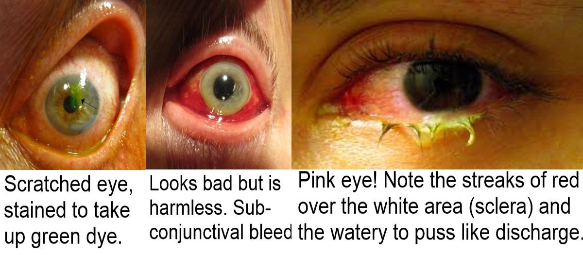 a eyes - Copy
