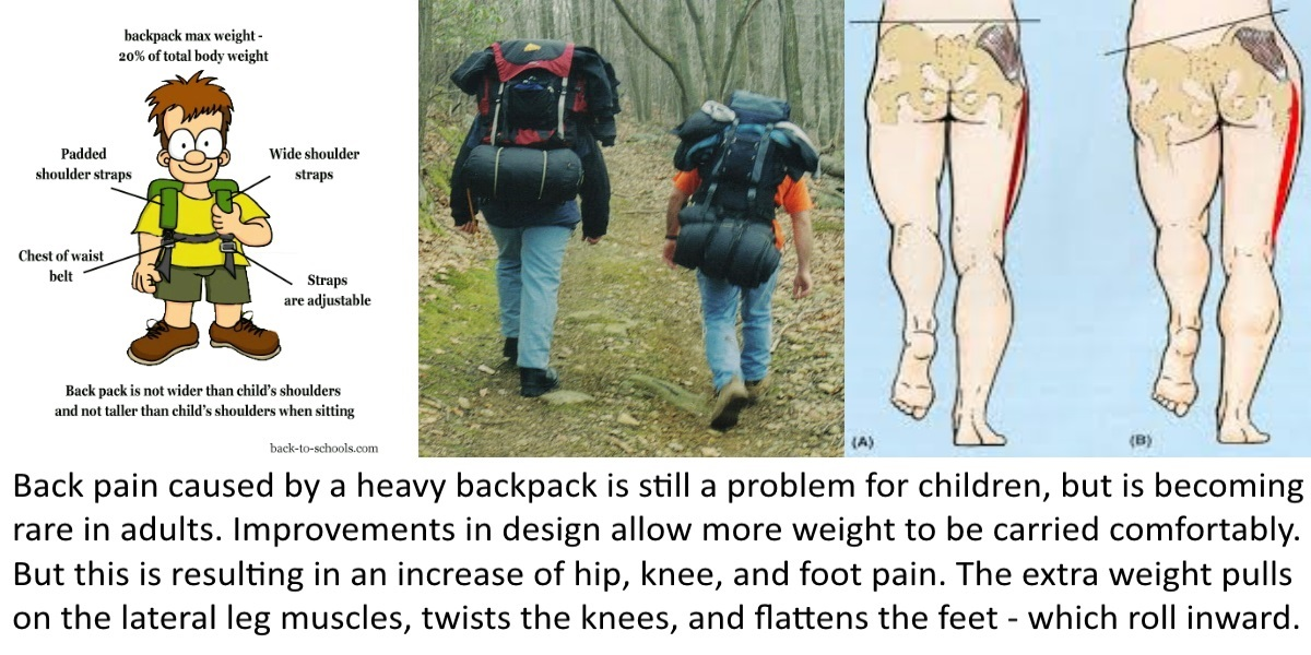 backpack pain
