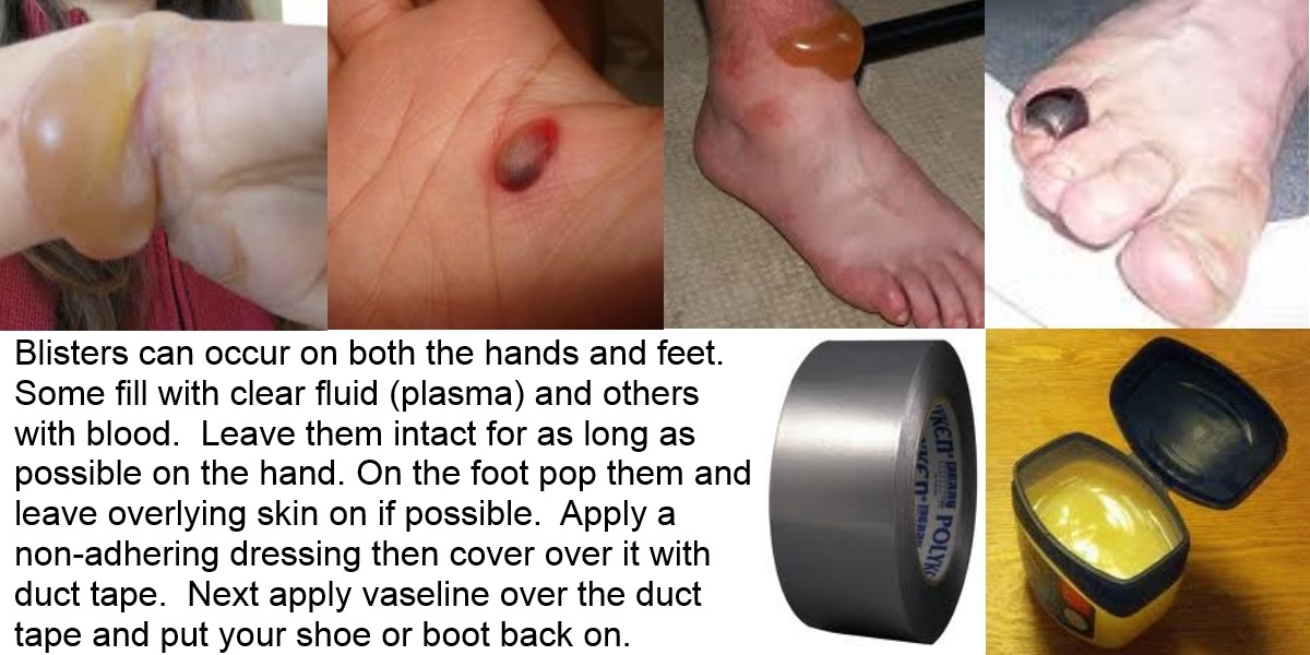 Treating Foot Blisters & Staying Mobile: There's Duct Tape!
