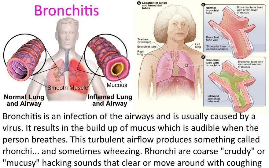 Treating bronchitis pneumonia in preppers medical devices bronchitis sciox Image collections