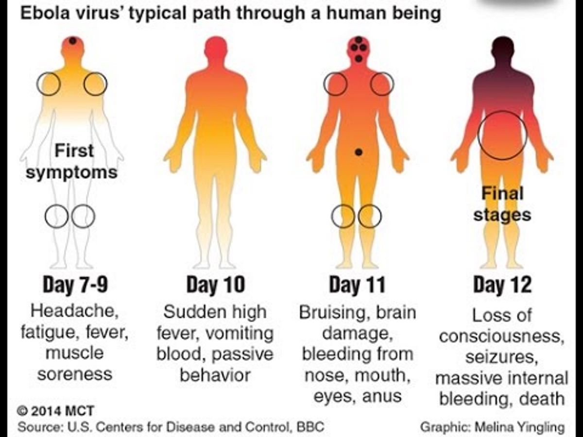 Ebola Progression of Disease