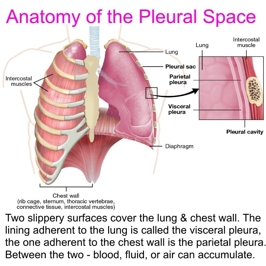 pleural fluid
