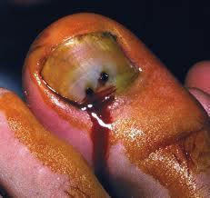 runners toe