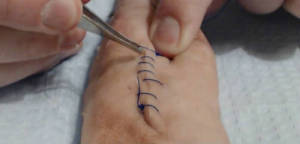 sutures vs superglue