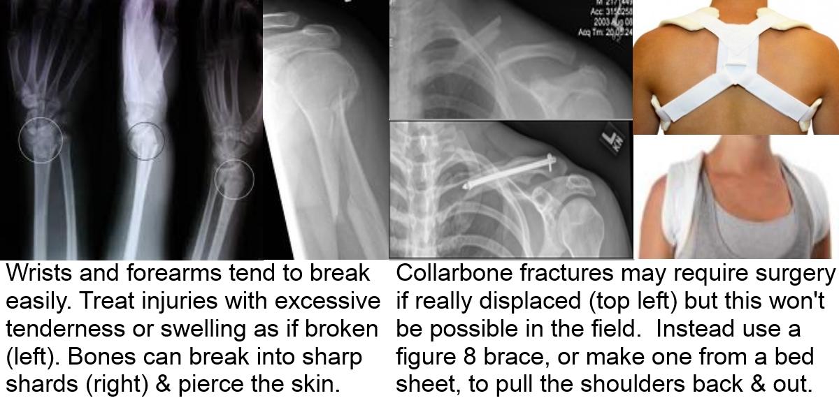 collarbone fractures