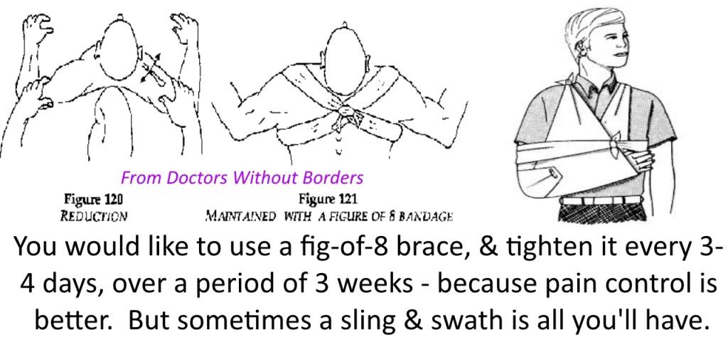 Improvised figure-of-eight brace