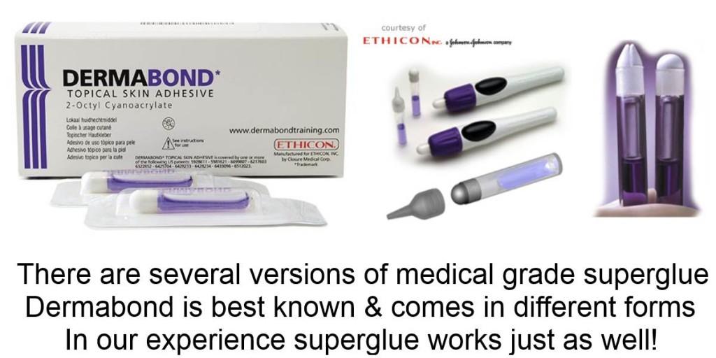 superglue vs. sutures